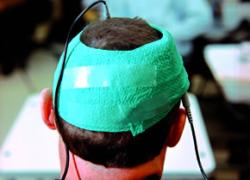 Testing tDCS against dementia (Image: Marc Asnin/New Scientist)